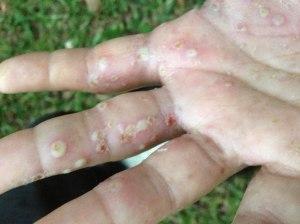 Desculpem pela imagem feia, mas essa foi a minha pior crise de dermatite. Foi em fevereiro de 2013. // My worst dermatitis crisis ever. February of 2013.