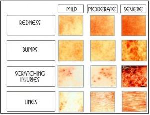 Eczema-Types-300x231