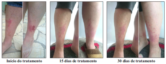 Foto do tratamento com óleos essenciais.